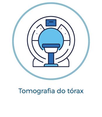 Tomografia do tórax
